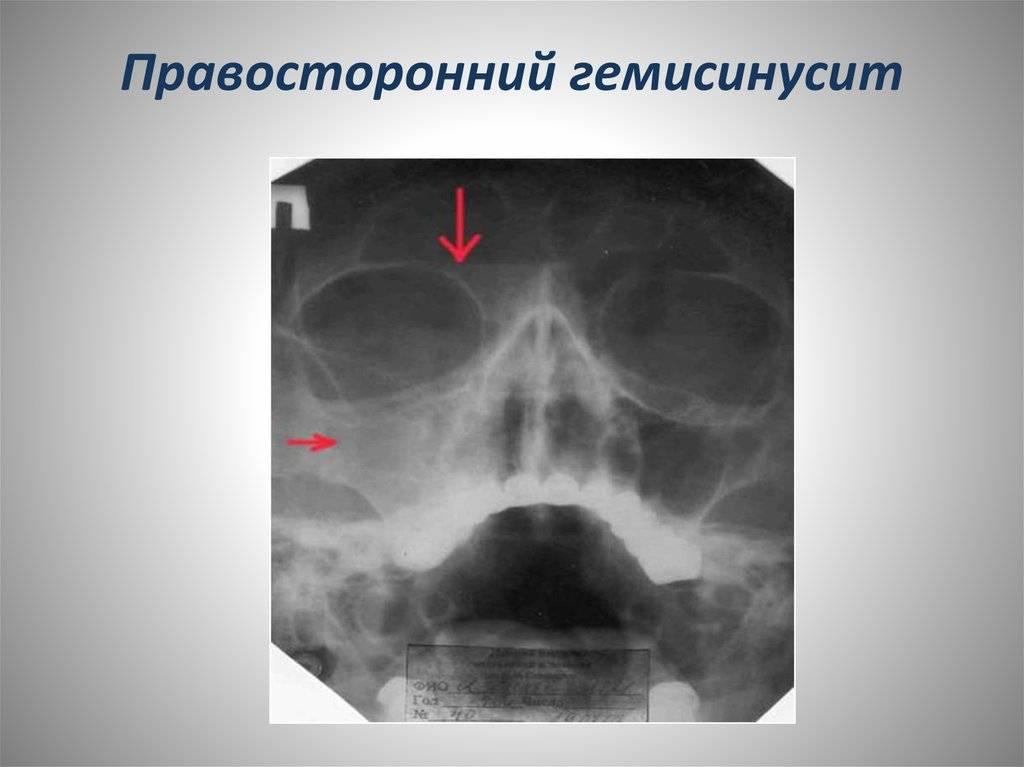 Отличия синусита от гайморита