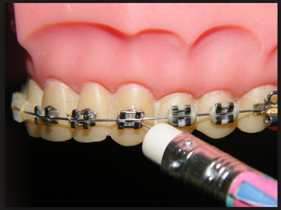 отклеился брекет на последнем зубе что делать