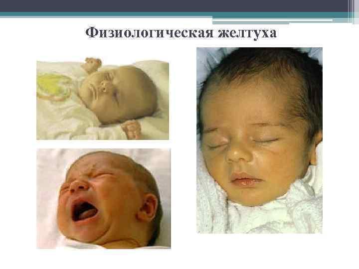 Желтуха у новорожденных: причины и последствия, сроки болезни
