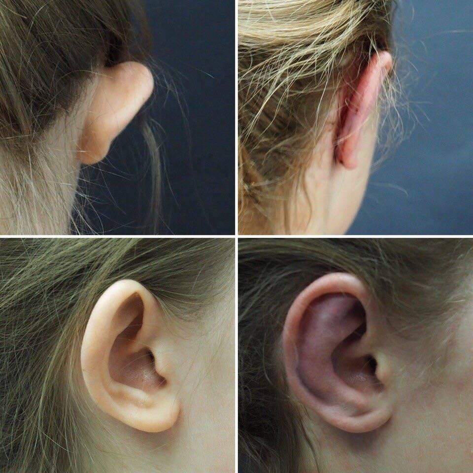 Отопластика – самые современные методы коррекции ушей