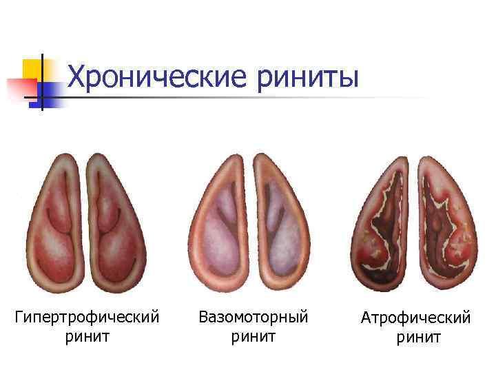 Симптомы и лечение гипертрофического ринита у взрослых пациентов