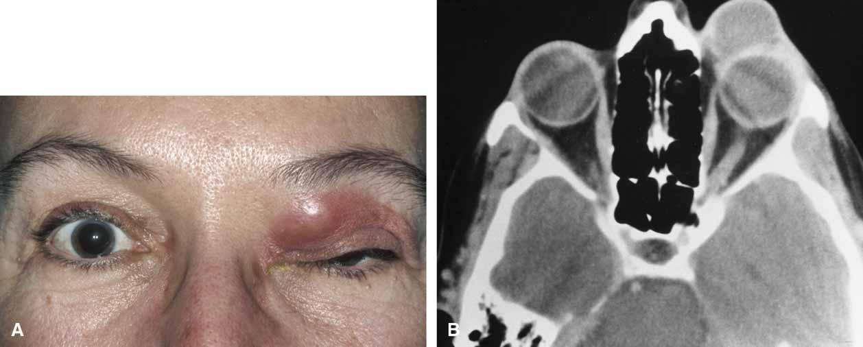 Одонтогенная киста верхнечелюстной пазухи лечение