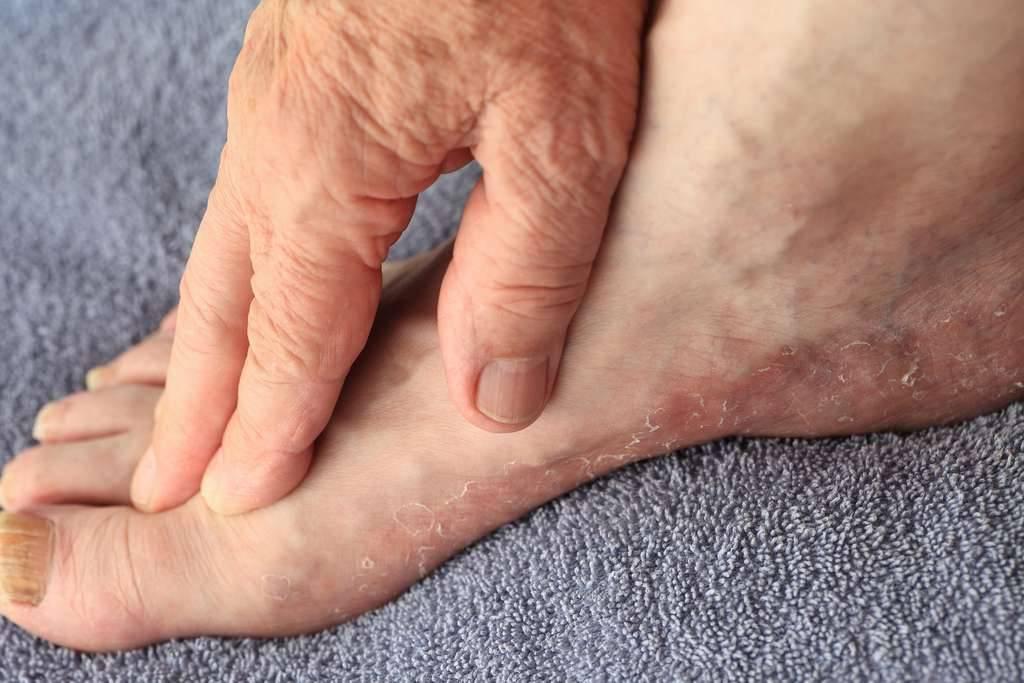 Как выглядит дерматит на ногах