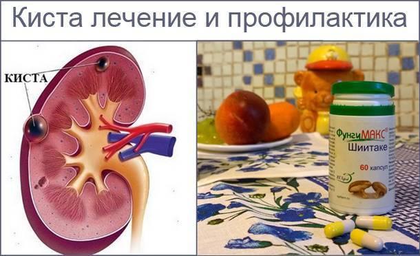 киста печени народные средства лечения