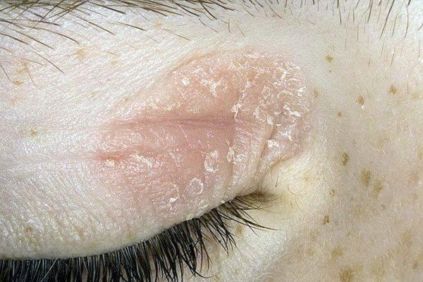 Какое лечение назначается при себорейном псориазе на лице?