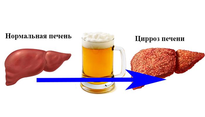 Вред пива для печени