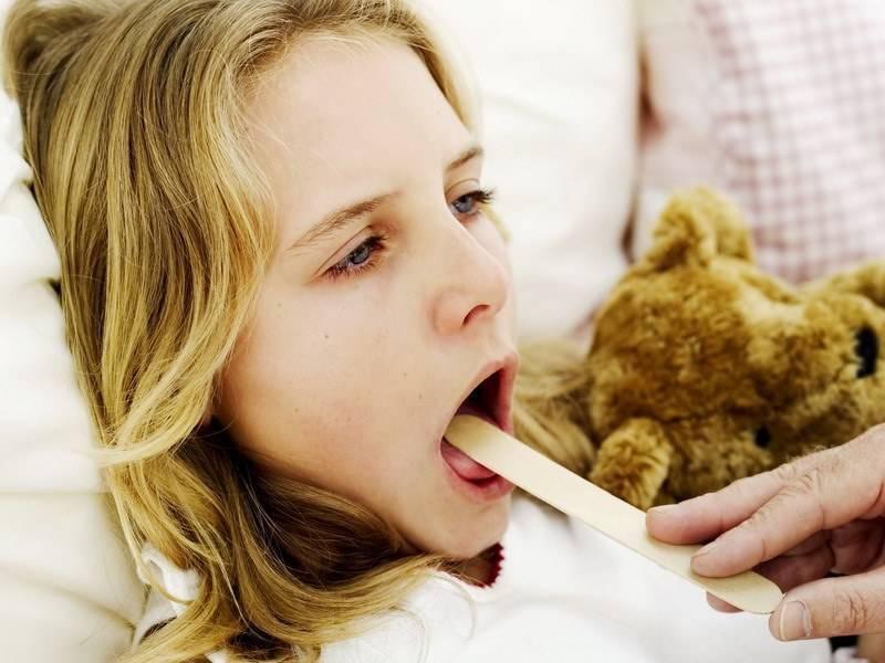 Острый тонзиллит: как не заразиться и что делать, если заболел?