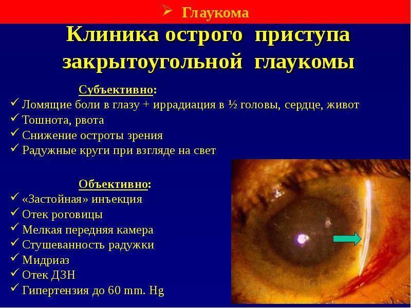 Чем опасен острый приступ глаукомы?