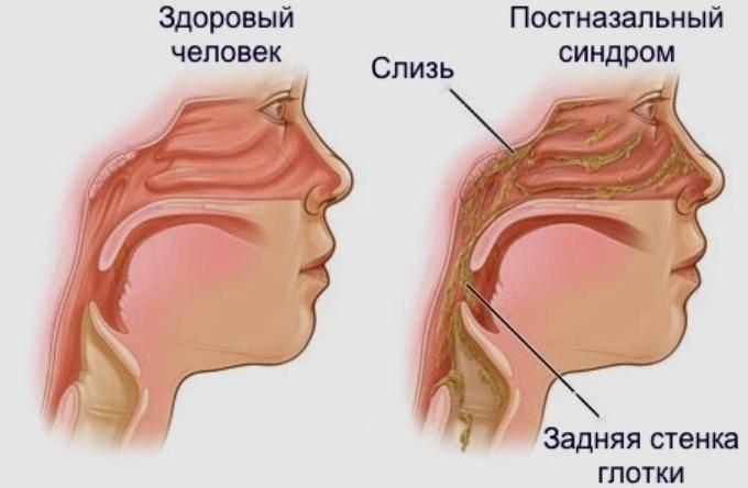 как лечить слизь в носоглотке
