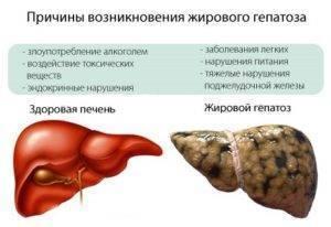 гепатоз печени лечение можно вылечить