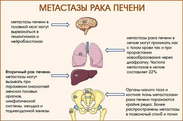 множественные метастазы в печени прогноз