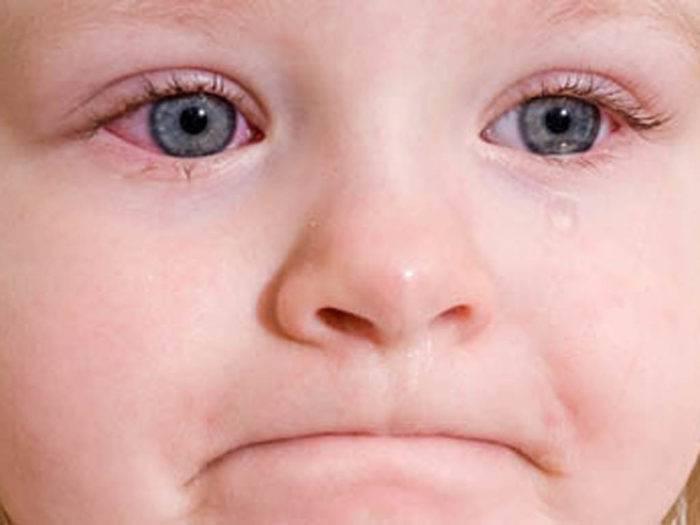 Что делать, если ребенку в глаза попал песок?