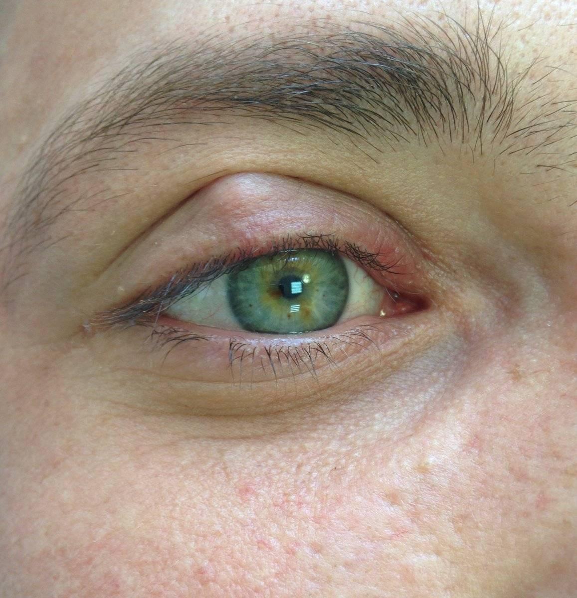 Застудил глаз что делать и как лечить