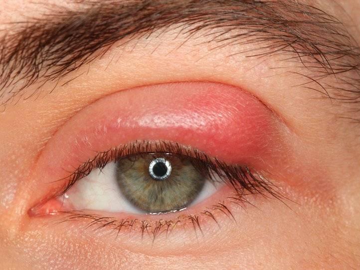 красные веки глаз причины