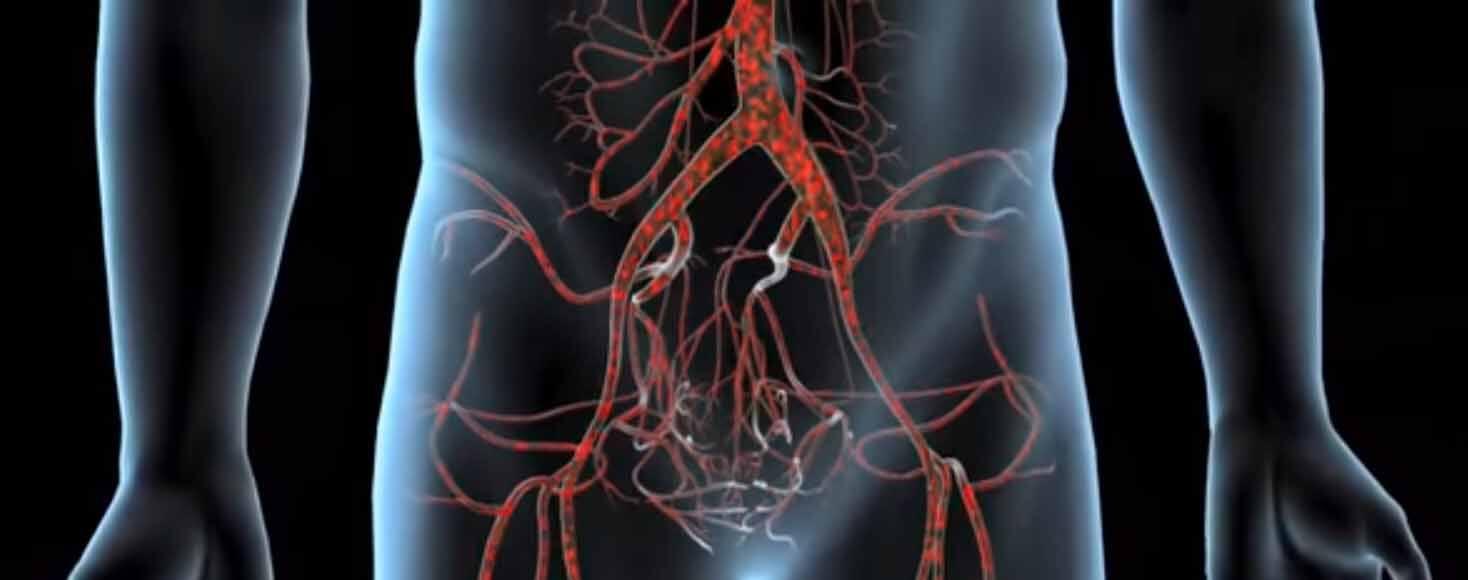 Последствия и причины атеросклероза брюшного отдела аорты