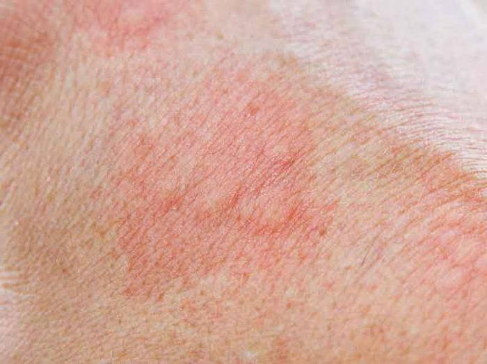 виды дерматитов