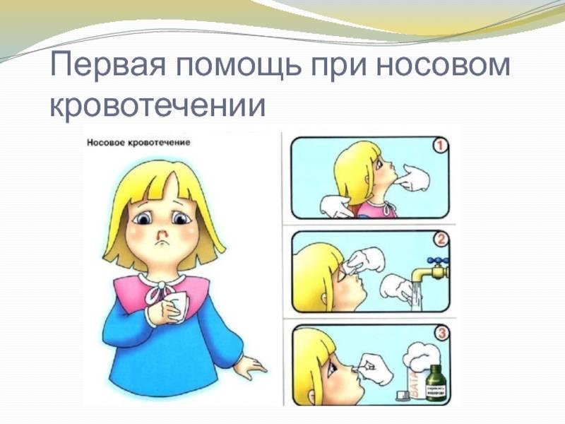 первая помощь при крови из носа