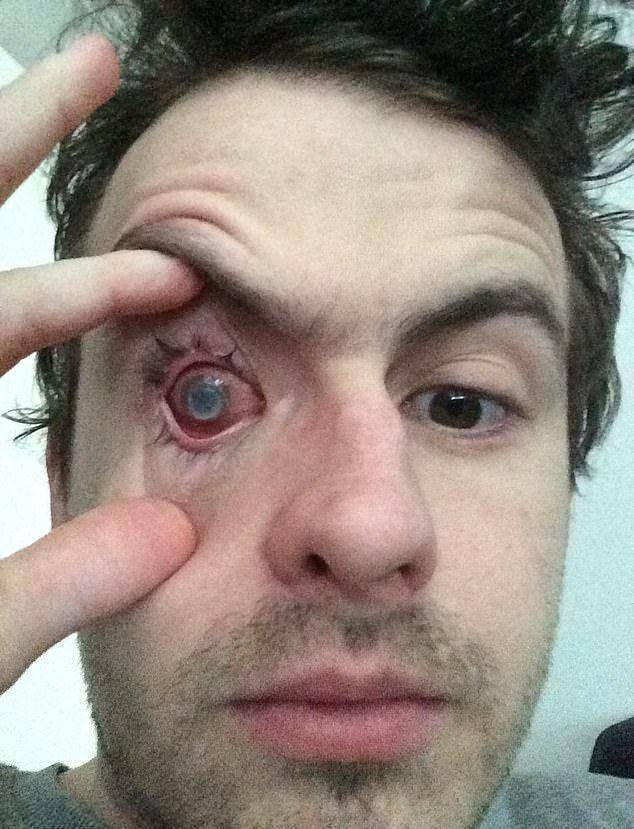 Операция по удалению глазного яблока