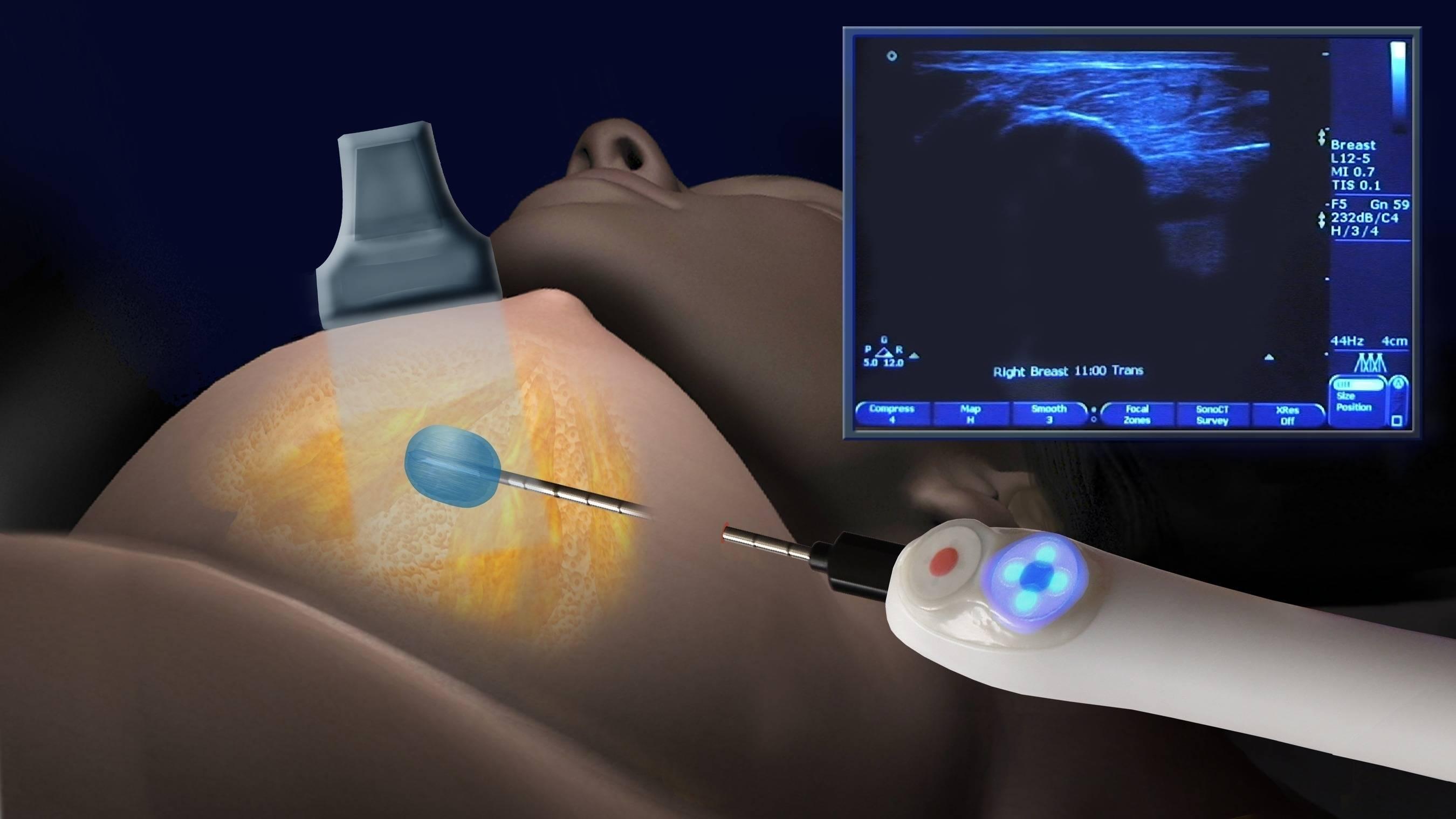 пунктирование кисты молочной железы
