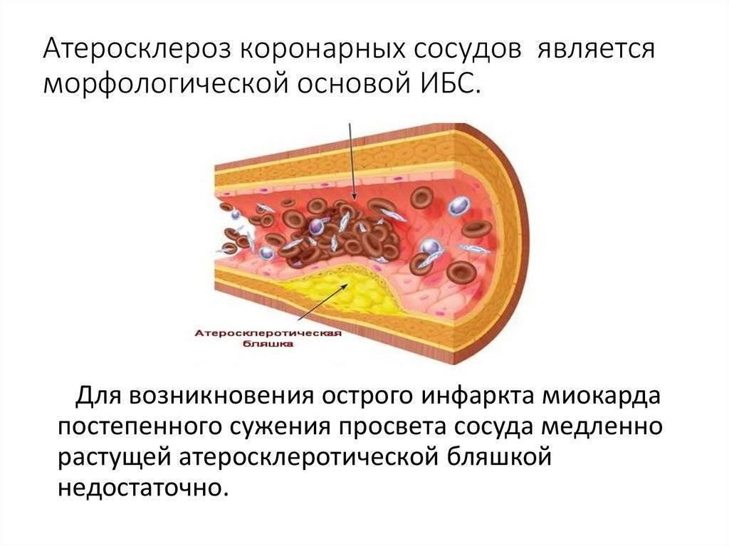 коронарный атеросклероз
