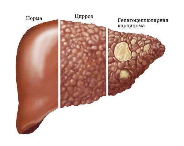 гепатоцеллюлярная карцинома печени прогноз