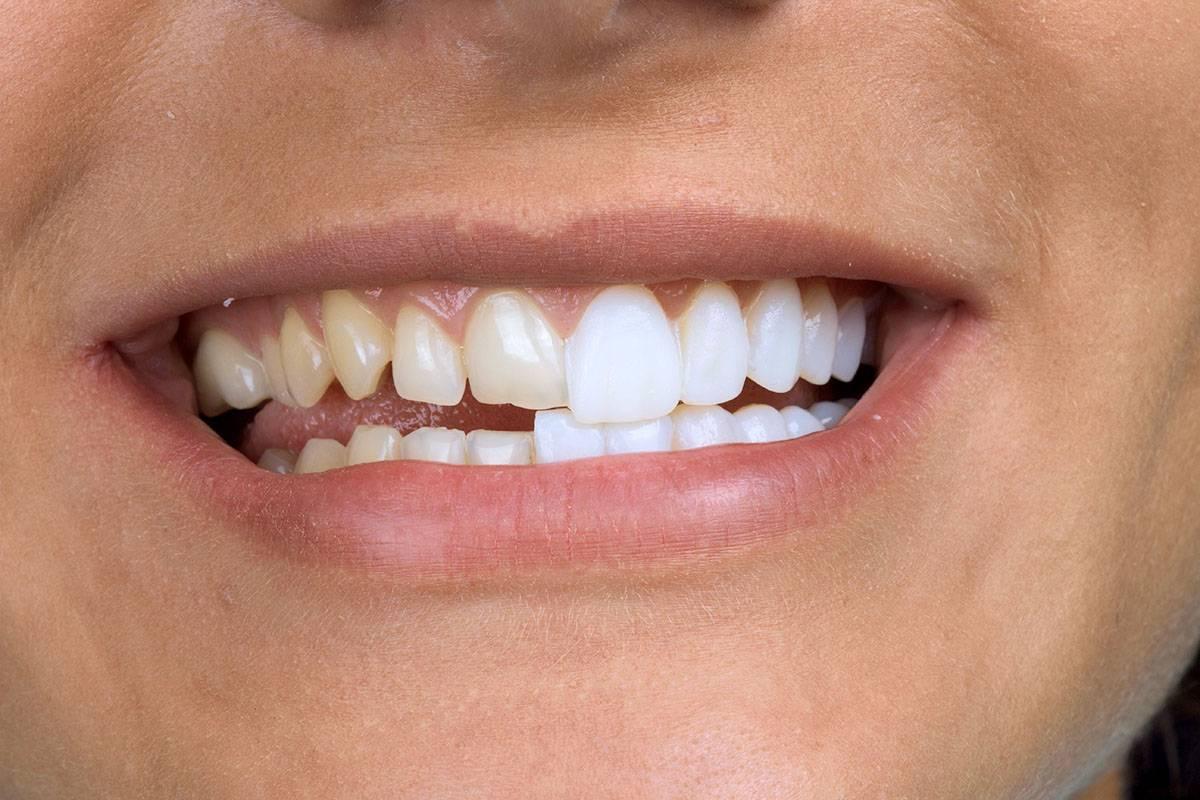 зубы виниры