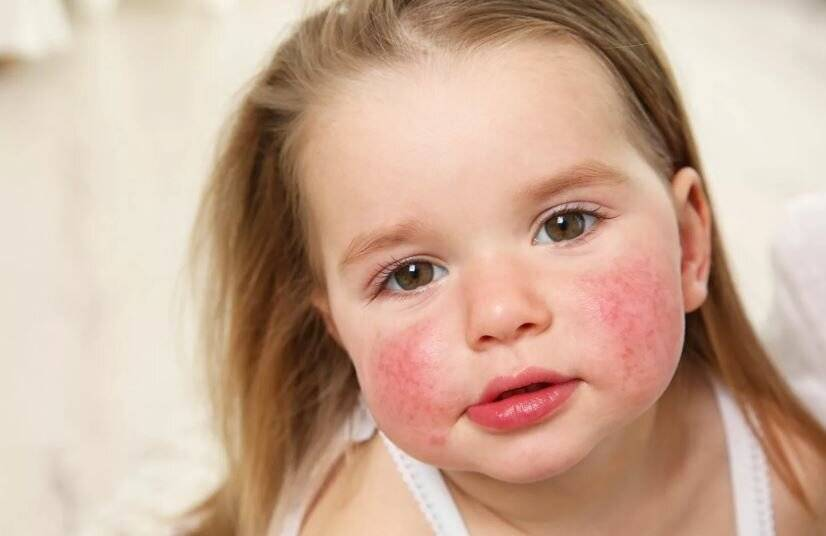 Атопический дерматит, крапивница, аллергия на все, глисты!!!!!!! - запись пользователя cvetlalala (id1673223) в сообществе детские болезни от года до трех в категории аллергия - babyblog.ru