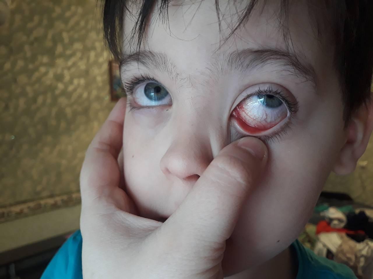 покраснел уголок глаза у ребенка