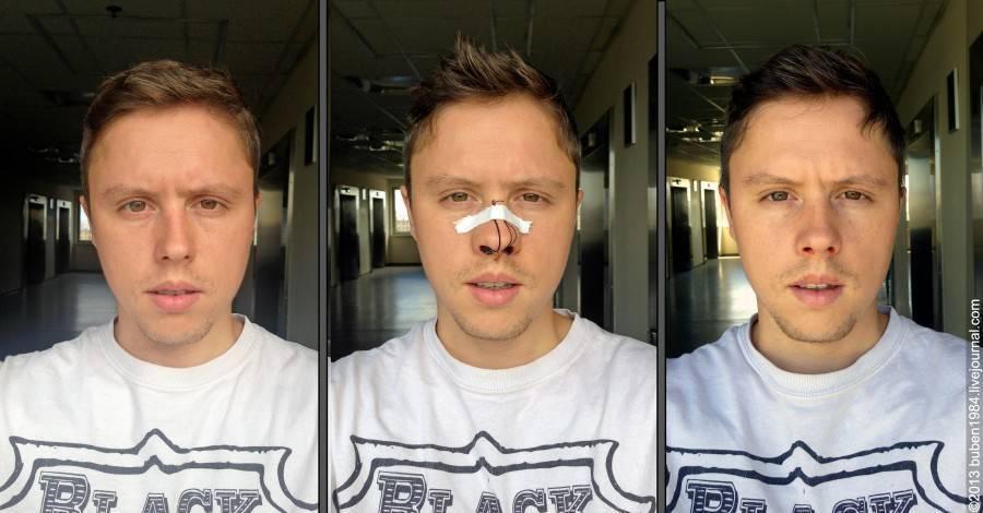 исправление кривой перегородки носа