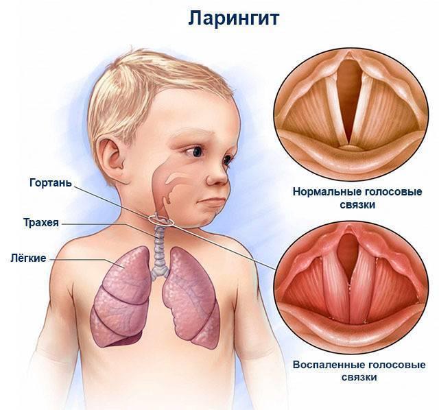 Ларинготрахеит: симптомы и лечение и профилактика