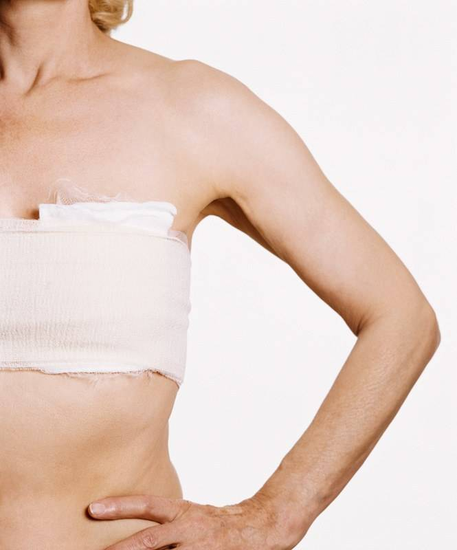 Удаление груди: когда мастэктомия действительно нужна   zdr.ru