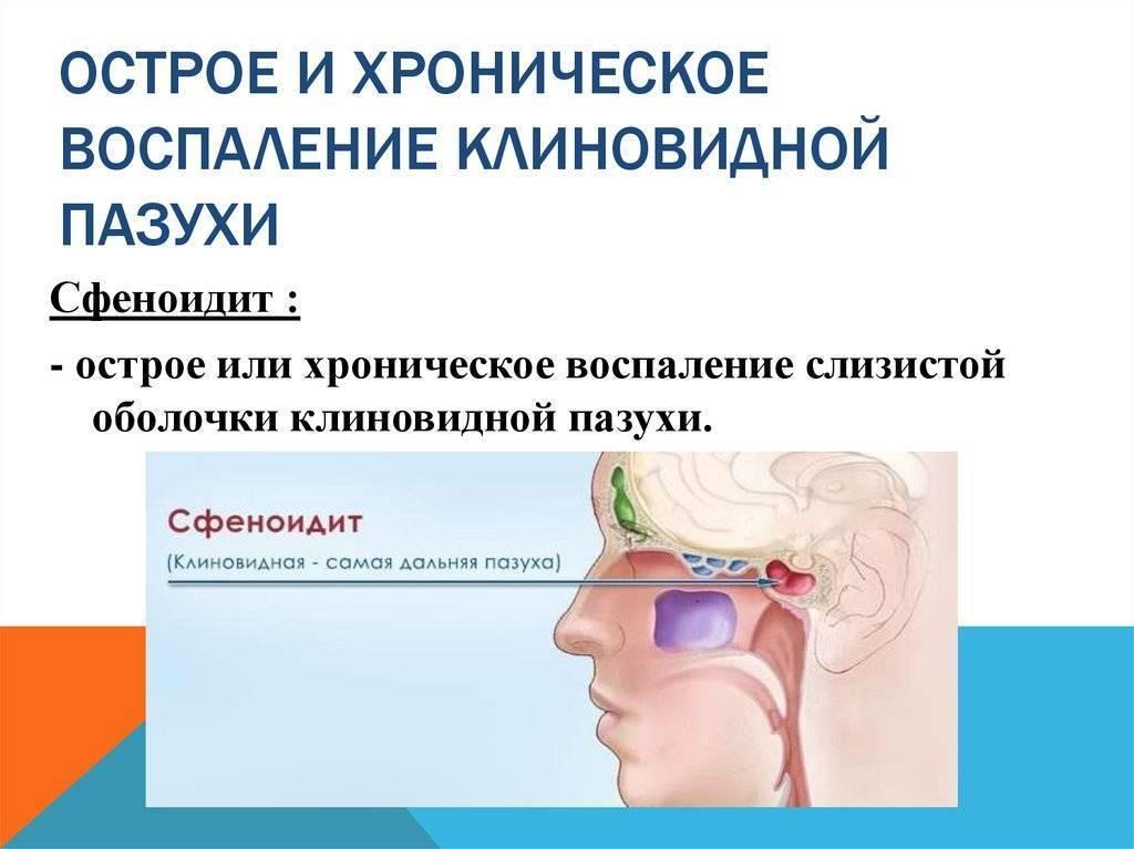 воспаление клиновидной пазухи симптомы