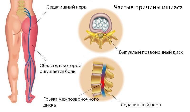 Лечение седалищного нерва дома