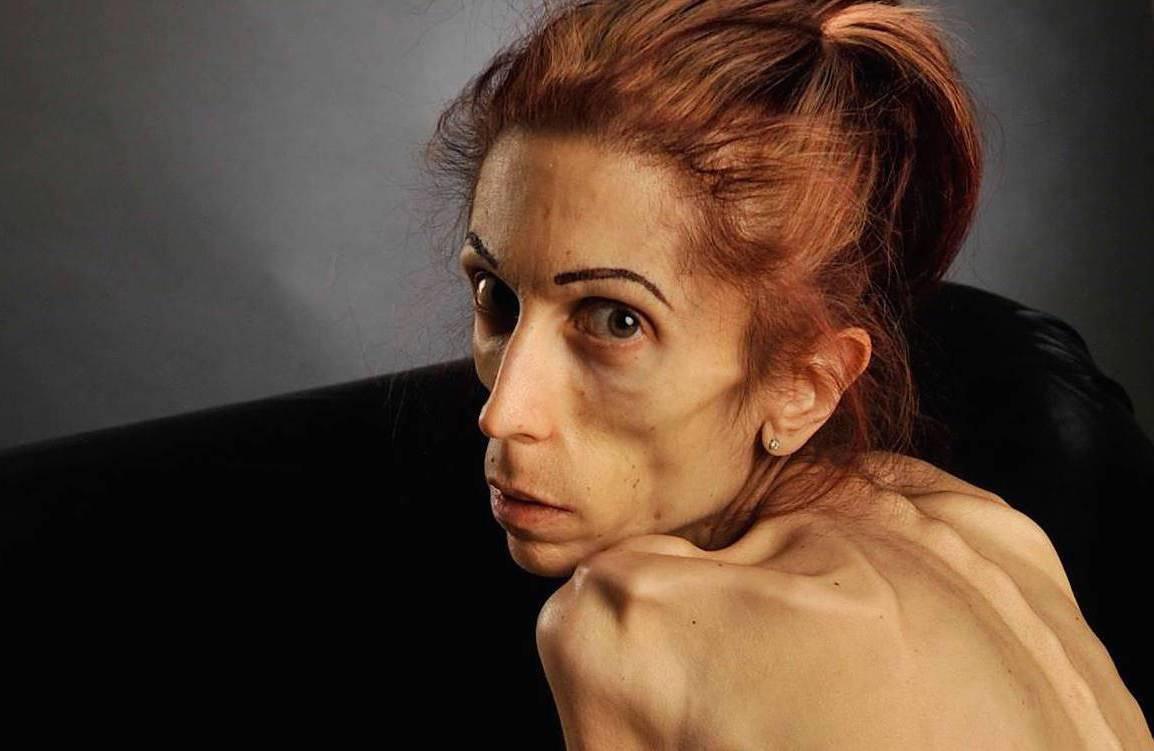 Анорексия: симптомы и причины