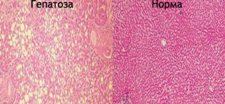 Гепатоз печени: симптомы. медикаментозное лечение жирового гепатоза печени