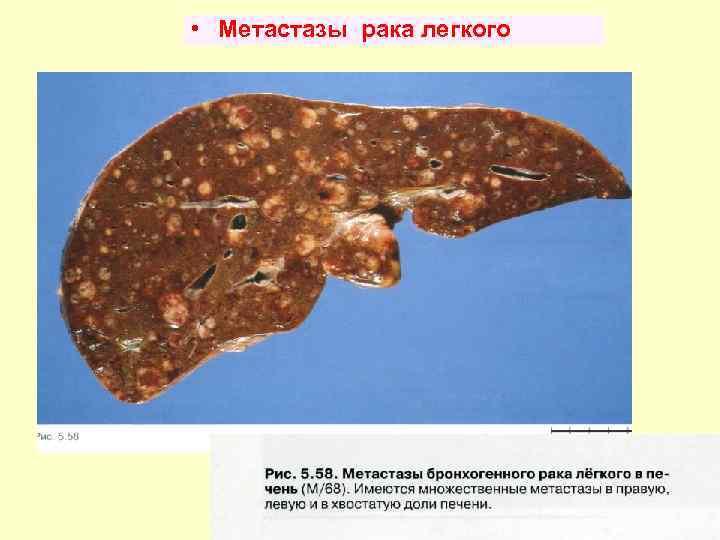 метастазы в печень продолжительность жизни