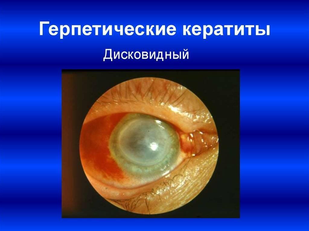 герпесный кератит глаза лечение
