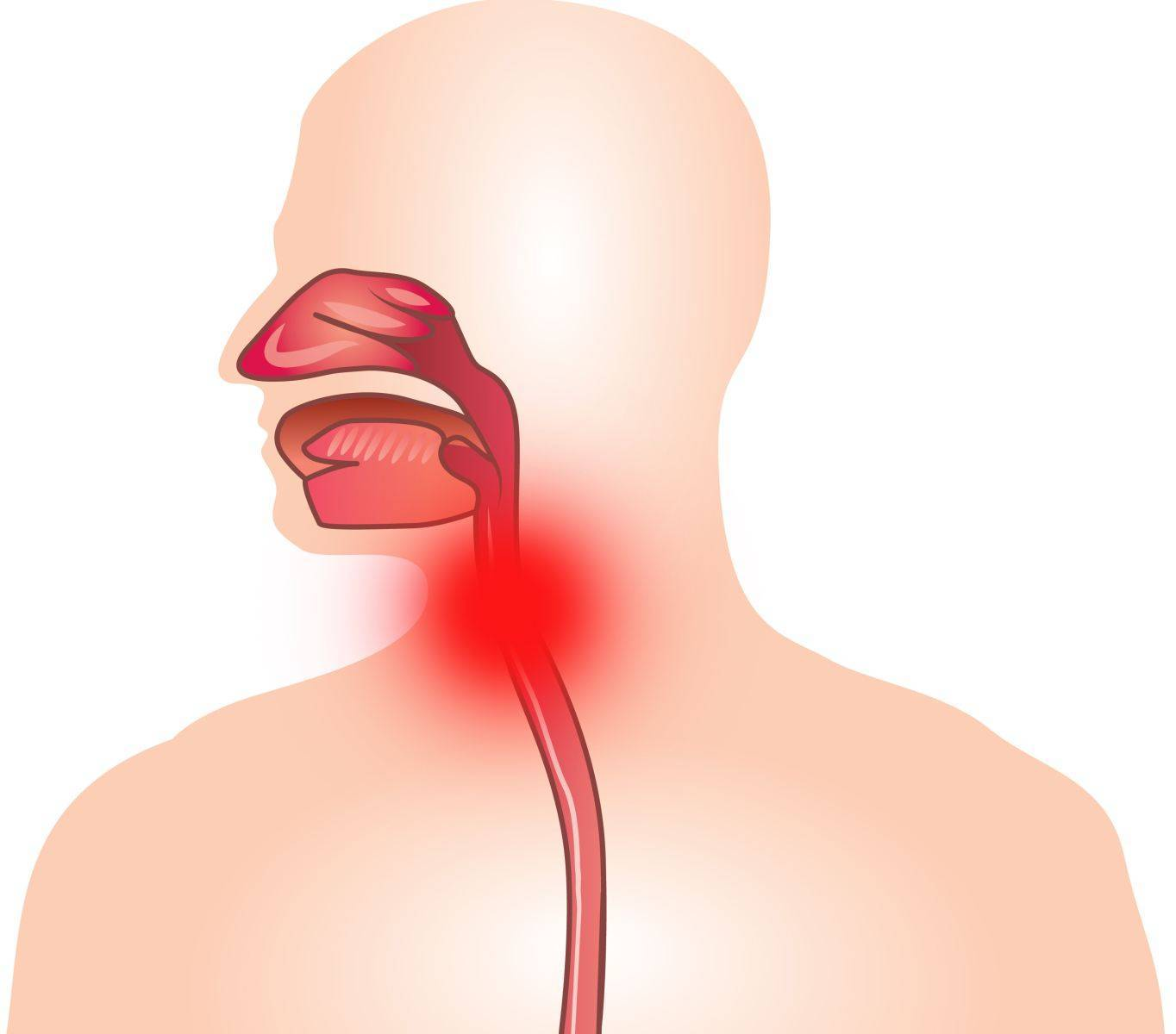 Болит горло трахея: все о беременности и детях