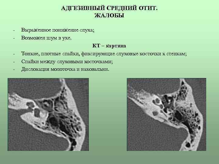 Адгезивная болезнь среднего уха: симптомы, причины, лечение — онлайн-диагностика