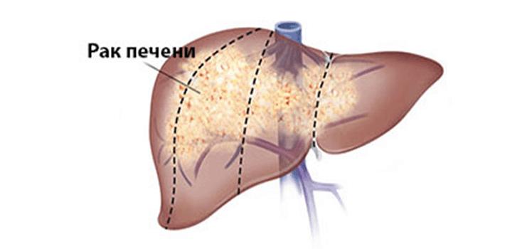 рак печени 4 стадия продолжительность жизни
