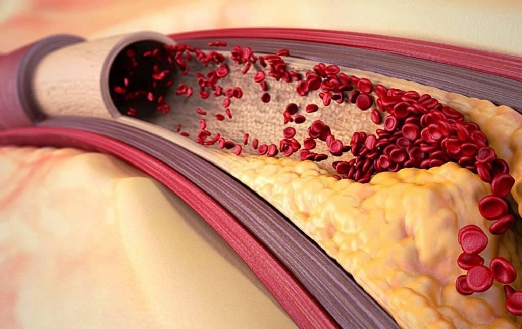 Холестерин. все, что нужно знать