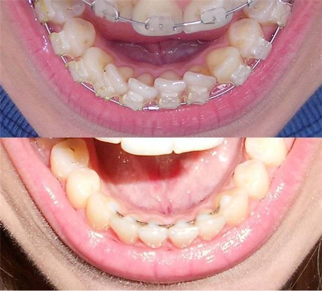После брекетов разъехались зубы - красота улыбки под угрозой