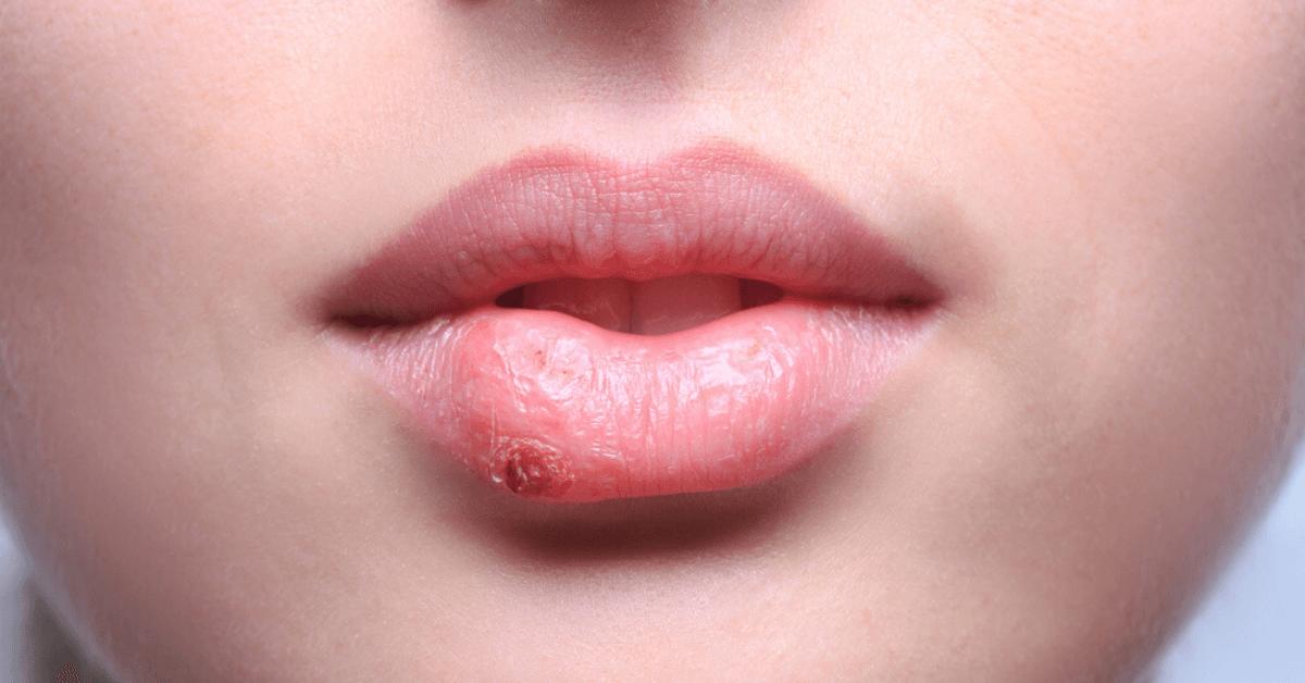 Как навсегда избавиться от герпеса на губах: особенности лечения