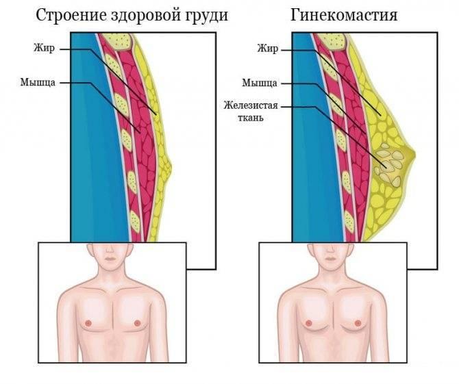 Гинекомастия без операции — препараты для лечения
