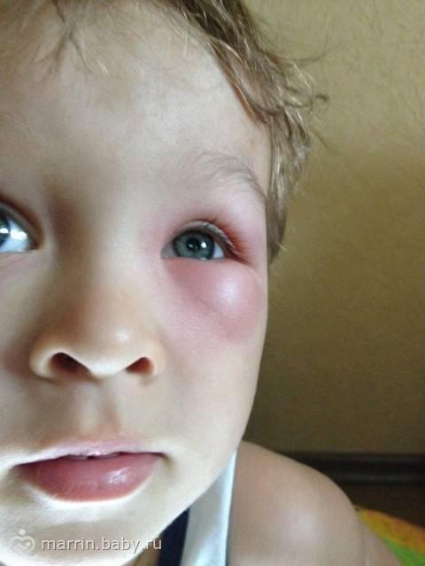 Аллергия на укус комара - укусил ребенка комар укус сильно опух - запись пользователя katrin (id834529) в сообществе детские болезни от года до трех в категории аллергия - babyblog.ru