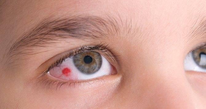 Ангиопатия сосудов сетчатки глаза у ребенка