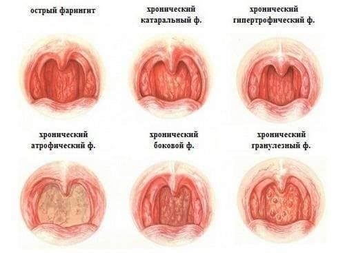Фарингит у взрослых: симптомы, лечение, профилактика