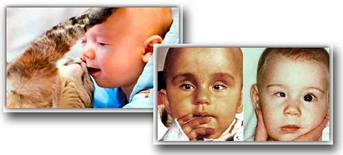 токсоплазмоз у ребенка