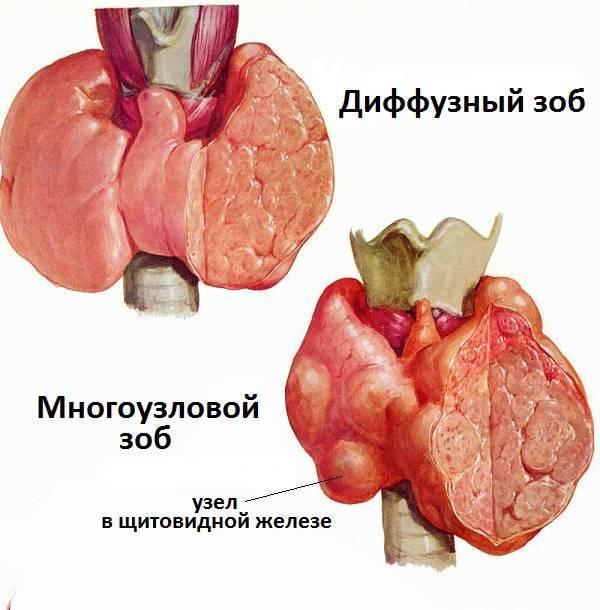 Гиперплазия щитовидной железы с диффузными изменениями лечение