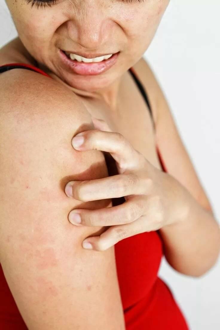 Нервная чесотка — причины, симптомы, лечение